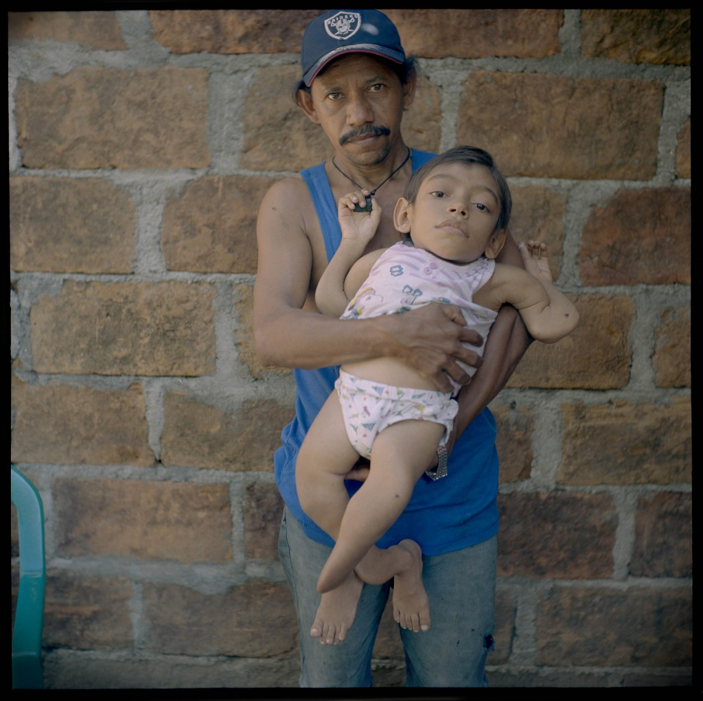 Chinadega, Nicaragua, Roberto Peralta Guitterez, 43, and son Roberto Francisco Peralta Salgera, 10. Roberto worked for three years (1977-1981) on plantations in Chinandega. He claims when the pesticide was sprayed, it burned all wild weeds that would grow in the banana fields. He was also responsible for loading and packing, and carrying the fruit from the farm to the packing station. His eyesight is diminishing, suffers from severe headaches, and pain in his bones. Roberto had two other sons who were born in a worse condition than Roberto Francisco, but died at young ages. Roberto Francisco has severe joint disfiguration, and severely stunted growth.